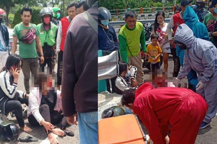 Korban penjambretan di Tapak Siring Surabaya alami luka bagian wajah, Kamis (21/1/2021).